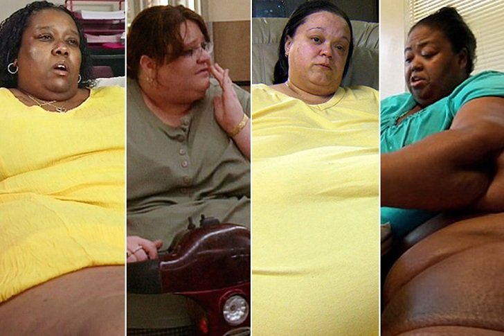 Weight loss surgery in somerset ky picture 3